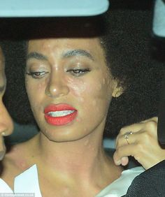 Angry rash: Solange Knowles was pictures with raised, itchy-looking blemishes all over her face and neck as she left her New Orleans wedding venue on Sunday after tying the knot with Alan Ferguson: A source told TMZ: 'Solange suffered some kind of food allergy, though she isn't sure what it was from....the hives were gone in a matter of minutes.'