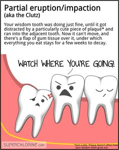2nd one for me - Fun way to learn about Wisdom Teeth!