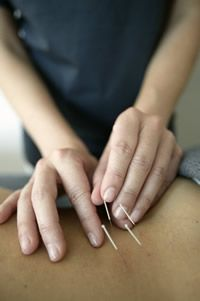 #Shaftesbury Clinic - Acupuncture - How does it work?