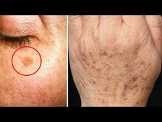 Prosta sztuczka pozwoli Ci usunąć przebarwienia ze skóry. Ta 2-składnikowa mieszanka czyni cuda - YouTube Diy Beauty, Beauty Hacks, Night Food, Youtube, Health, Portal, Wax, Thicker Hair, Nursing Care