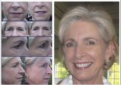 Rodan + Fields Dermatologists - Redefine & AMP MD - Before & After Results GET ROLLING!!  www.lisabadley.myrandf.com