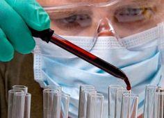 Un simple test sanguíneo podría localizar dónde crecen los tumores