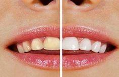 Se brosser les dents avec du sel de mer et/ ou du bicarbonate de soude : c'est un moyen sûr et naturel d'avoir des dents et des gencives fortes, de rompre l'accumulation de la plaque et d'éviter la…