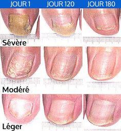 Mycosis of the nails: natural remedies Nail Fungus, Fungus Toenails, Toe Nails, Fungi, Nail Care, Natural Remedies, The Cure, Fruit, Tips