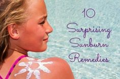 Believe it or not, the sunburn is coming.  Here are some surprising remedies...