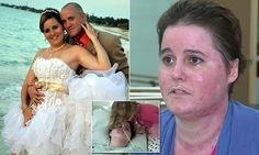 Woman speaks out about being set on fire by her estranged husband Domestic Violence, Rest, Faces, Husband, Woman, Wedding Dresses, Google, Image, Collection
