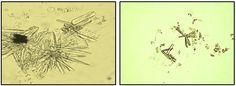 CRISTAIS DE FOSFATO DE CÁLCIO (Cristais de Urina Alcalina) Body Fluid, Vintage World Maps, Biology, Crystals, Porto, Veterinary Medicine, Study, Ap Biology