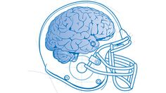 To Prevent Concussions, This Collar Restricts Bloodflow From Your Brain. Can it Really Work?