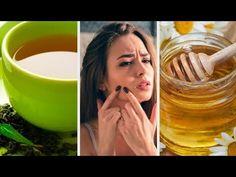 9 remedios naturales efectivos contra el acné juvenil Glass Of Milk, Health Tips, Beauty Hacks, Youtube, Natural Remedies, Club, Teeth, Moisturize Hair, Hair Straightening
