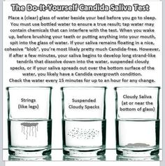 Candida Spit test. Plexus ProBio5 can help. If you've had antibiotics, drink alcohol, or eat a basic American diet - you probably have Candida overgrowth. 80% of our immune system is in our gut. Get your gut healthy and you will be healthy!
