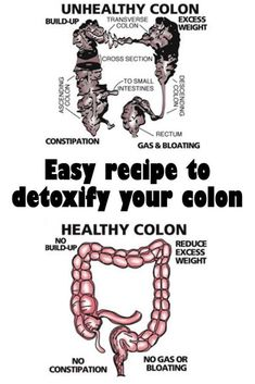 Colon Cleanse Powder, Colon Cleanse Tablets, Colon Cleanse Drinks, Natural Colon Cleanse, Smoothie Cleanse, Body Cleanse, Cleanse Detox, Detox Drinks, Cleansing Smoothies
