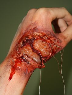 Extreme Spider Bite SFX makeup by Claire Dempsey