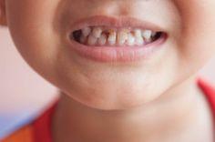 #cavities