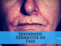 Seborrheic dermatitis on face is a common condition that you can manage. Find the best treatment and tips for seborrheic dermatitis. Face Treatment, Seborrhoeic Dermatitis, Rash On Face, Essential Oils For Face, Eczema Remedies, Health Remedies, Skin Whitening