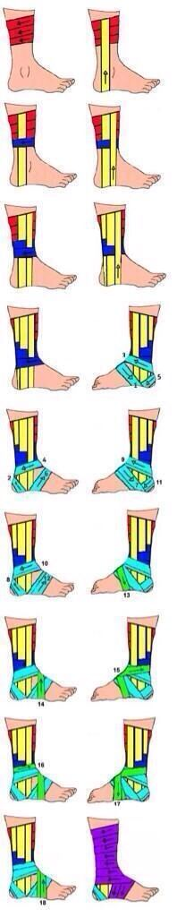 How to tape a rolled ankle