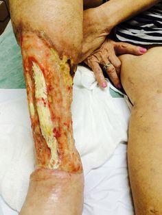 Imagem forte da perna completamente destruida pela úlcera.