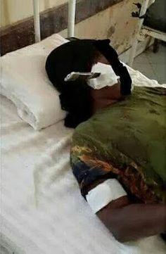 Ele & Elis Blog: Woman Stabbed On The Cheek By Her Husband Undergoe...
