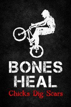 Bones Heal Chicks Dig Scars BMX Sports Poster Print by NaxArt Transportation Poster - 61 x 91 cm Bmx Bicycle, Bmx Bikes, Dirt Bikes, Bmx Racing, Bmx Freestyle, Ironman Triathlon, Popular Sports, Famous Words, Bicycle Design