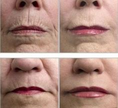 Natural Home made wrinkle remover