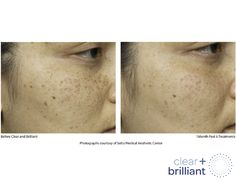Melasma and pigmentation treatment using Spectra, GenesisPlus, Picosure, Clear and Brilliant Lasers and LumaBright Peel