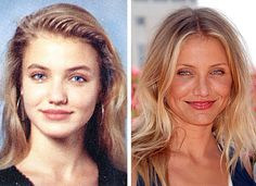 Cameron Diaz' Nose Job  This star has readily admitted to having celebrity plastic surgery to fix her nose.