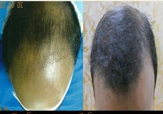 If you are searching Hair transplant surgeon in Mumbai? Visit at Cosma Zone! They provide best hair transplantation surgeon which is use FUE technique by their well experts and experience doctor. Call on 09425111944 for more queries.