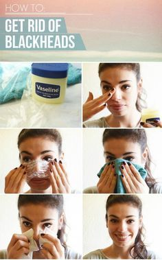 How to get rid of blackheads once and for all! PERMANENT solution! Finallyyy