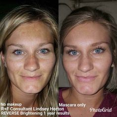 Check out Lindsay's results after using Rodan and Fields' Reverse Brightening Regimen! If you are looking to remove sun damage and get a more even complexion, this is for you! Lightening will help reduce the appearance of sun spots, while Brightening will help give your skin the glow you are looking for with a more even complexion! The AMP MD roller helps you see results faster, but should not be using with the lightening regimen.