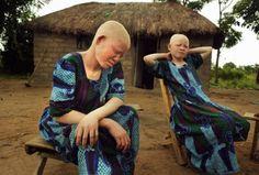 Τανζανία: Σκότωσαν γυναίκα με αλφισμό για να φτιάξουν φίλτρο για καλοτυχία!