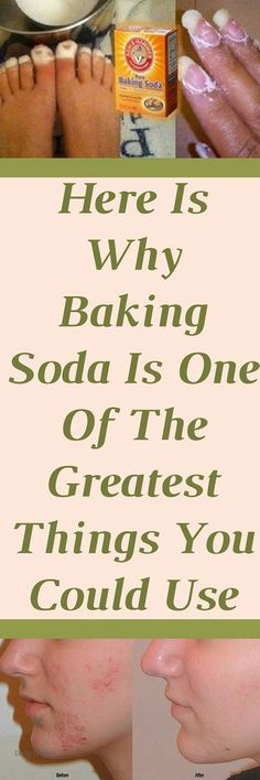 Baking soda is likely the most inexpensive health remedy in the world. It is effective at combating everything from colds to cancer, as well as beneficial for oral health, deodorants and so much more. Oral Health, Health And Wellness, Health Tips, Health Benefits, Baking Soda Benefits, Baking Soda Uses, Health Remedies, Home Remedies, Natural Remedies