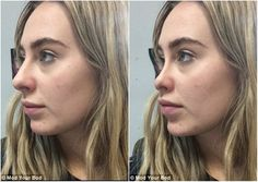 Free apps simulate effects of plastic surgery Nose Plastic Surgery, Celebrity Plastic Surgery, Nose Surgery, Face Fillers, Botox Fillers, Facial Cosmetic Surgery, Bulbous Nose, Pretty Nose, Rhinoplasty Before And After