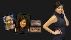 If you're looking for the best dentist Melbourne CBD? We offer General, Restorative and Cosmetic Dentistry Porcelain Veneers, Smile Makeover, Melbourne Cbd, Best Dentist, Whitening Kit, Cosmetic Dentistry, Your Smile, 18 Months, Clinic