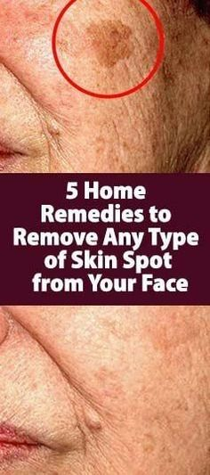 5 HOME REMEDIES TO REMOVE ANY TYPE OF SKIN SPOT FROM YOUR FACE