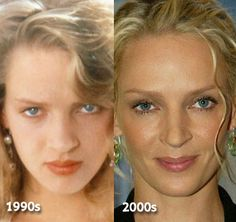 Natural Skin Care  ....  Chatter Busy: Uma Thurman Nose