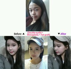 plastic surgery - cosmetic surgery / double eyelid surgery, rhinoplasty, nose surgery, eye surgery, fat transfer, fat grafting surgery, asian surgery, asian rhinoplasty #plasticsurgery #cosmeticsurgery #eyesurgery #nosesurgery #doubleeyelid #doubleeyelidsurgery #asiansurgery #makeover #fattransfer #fatgrafting #plasticsurgeon
