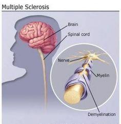 Esclerosis multiple definicion sintomas y signos de la enfermedad