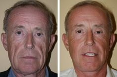 Regenerate sagging face skin and beat wrinkles with face training exercises and acupressure rubbing solutions. The combination is a powerful way to smooth out face wrinkles and raise loose facial skin for a more youthful look. Facial Exercises For Men, Face Lift Exercises, Double Chin Exercises, Facelift Without Surgery, Sagging Face, Face Tightening, Natural Face Lift, Facial Yoga