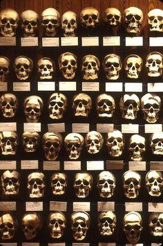 Skulls from the Mutter Museum of medicine, Philadelphia, PA.
