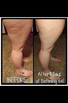 Defining Gel , aka the liquid gold !! Helps varicose & spider veins and also cellulite .