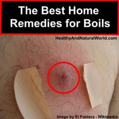 The Best Home Remedies for Boils