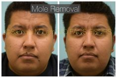 This 34-year-old gentleman is shown before and 10 months after multiple mole removals: left cheek, right cheek, right lip, and left anterior neck.  If you need a consult with Dr. Lam, please contact us by 📞972-312-8188 🌎 www.lamfacialplastics.com 📩 info@lamfacialplastics.com 📍6101 Chapel Hill Boulevard, Suite 101, Plano, Texas 75093  🌐We also offer phone and virtual consultations Plano Texas, Mole Removal, Chapel Hill, Gentleman, How To Remove, Lips, Phone, Telephone, Phones