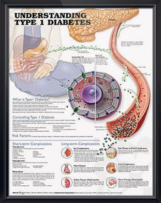 Understanding Type 1 Diabetes anatomy poster describes how Type 1 diabetes affects the process of insulin production by the pancreas. Endocrinology for doctors and nurses.