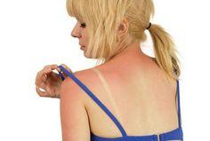 Sunburn Treatment at Home: Treat sunburn skin with home remedies. How to treat the sunburn skin? Sunburn treatment in ayurveda. Sunburn treatment face home. Home Remedies For Burns, Natural Remedies For Sunburn, Sunburn Remedies, Natural Cures, Health Remedies, Natural Health, Natural Skin, Herbal Remedies, Health Tips