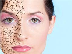 Сухая кожа лица: действенные советы по уходу