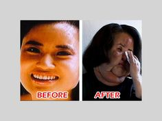 Top 10 Best Examples of Worst Plastic Surgery:  cooking oil injections