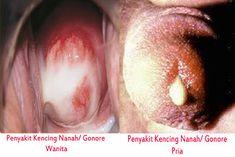 Totul despre sifilis: Cauze, Simptome si Tratament   premiidubledoncafe.ro