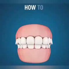 Health and fitness: dental health Dental Assistant Study, Dental Hygiene School, Dental Procedures, Dental Braces, Dental Surgery, Dental Implants, Dental Jokes, Dental Art, Dental Videos