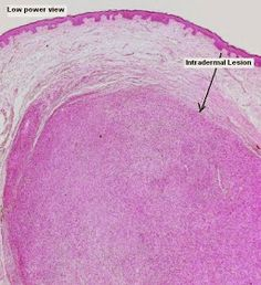 Low power view of a neural tumour. New - Dermatopathology Quiz Case 116 Medicine, Cases, Medical