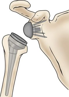 The components of a reverse total shoulder replacement Reverse Shoulder Replacement, Shoulder Replacement Surgery, Joint Replacement, Rotator Cuff Exercises, Rotator Cuff Tear, Humerus Fracture, Shoulder Surgery Recovery, Shoulder Arthroscopy, Shoulder Anatomy