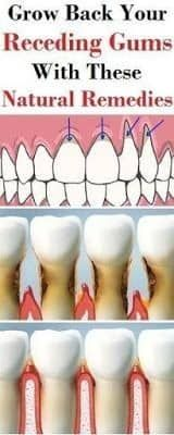 Holistic Remedies Grow back you receding gums with these natural remedies Mundpflege Alluring Become a Natural Holistic Health Practitioner Ideas Gum Health, Teeth Health, Oral Health, Dental Health, Health And Wellness, Healthy Teeth, Hair Health, Holistic Remedies, Natural Home Remedies